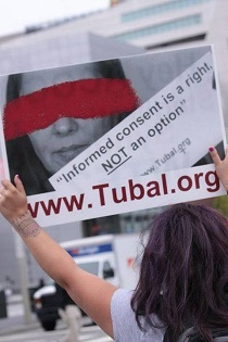 Tubal ligation informed consent is a right, NOT an option!