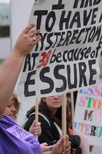 Issure Problems ~ Essure side effects