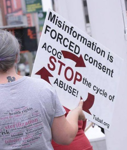 Misinformation and omissions regarding tubal ligation is forced consent.